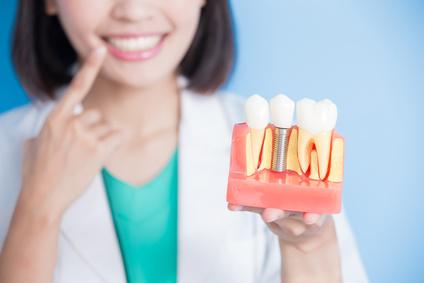 失った歯をおぎなうときに一番お勧めな方法が、インプラント治療です。