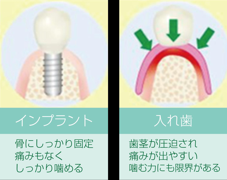 インプラントと入れ歯の比較図